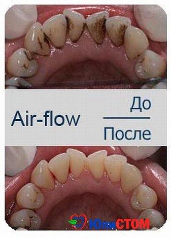 Использование Air-flow для удаления зубного камня