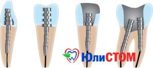 восстановление зуба штифтом