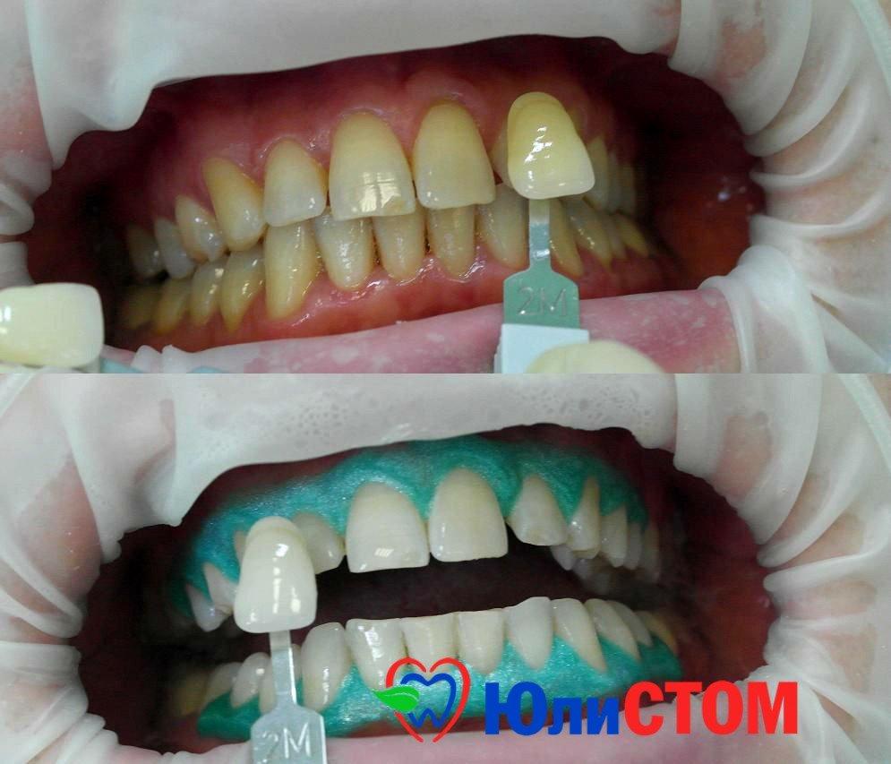 Отбеливание зубов: методы и ньюансы