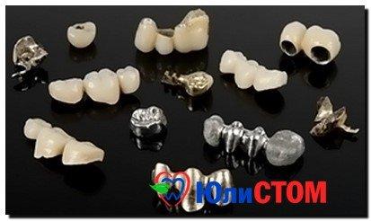 виды металлокерамических зубов