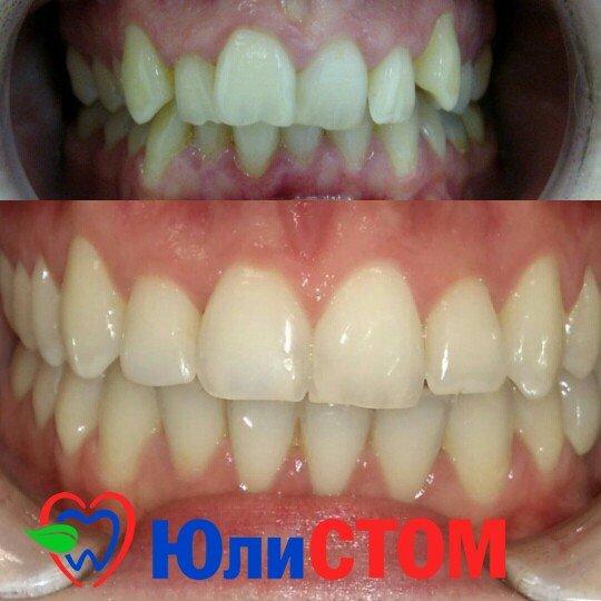 Ортодонтия в Санкт-Петербурге (пример)