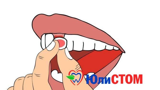 Шатающийся зуб - признак проблем со здоровьем