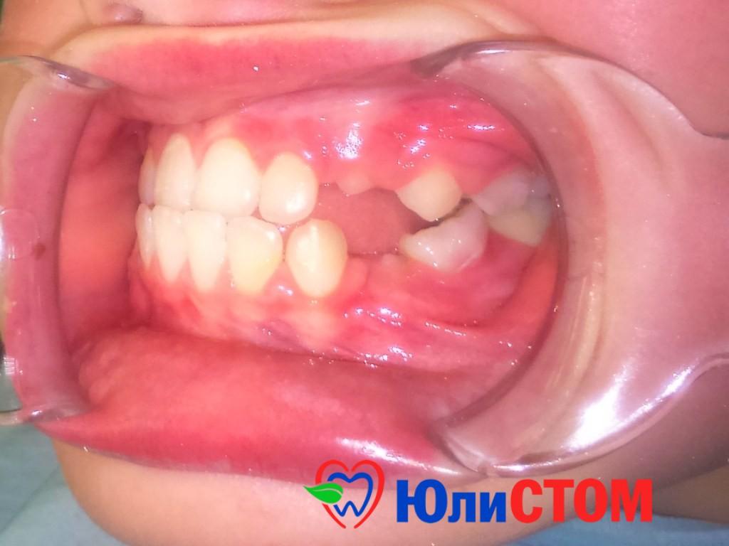 Воспаление десен часто ведет к потере зубов