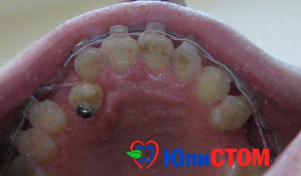зубной камень - фото