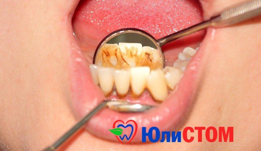 Как удалить камни с зубов в домашних условиях фото