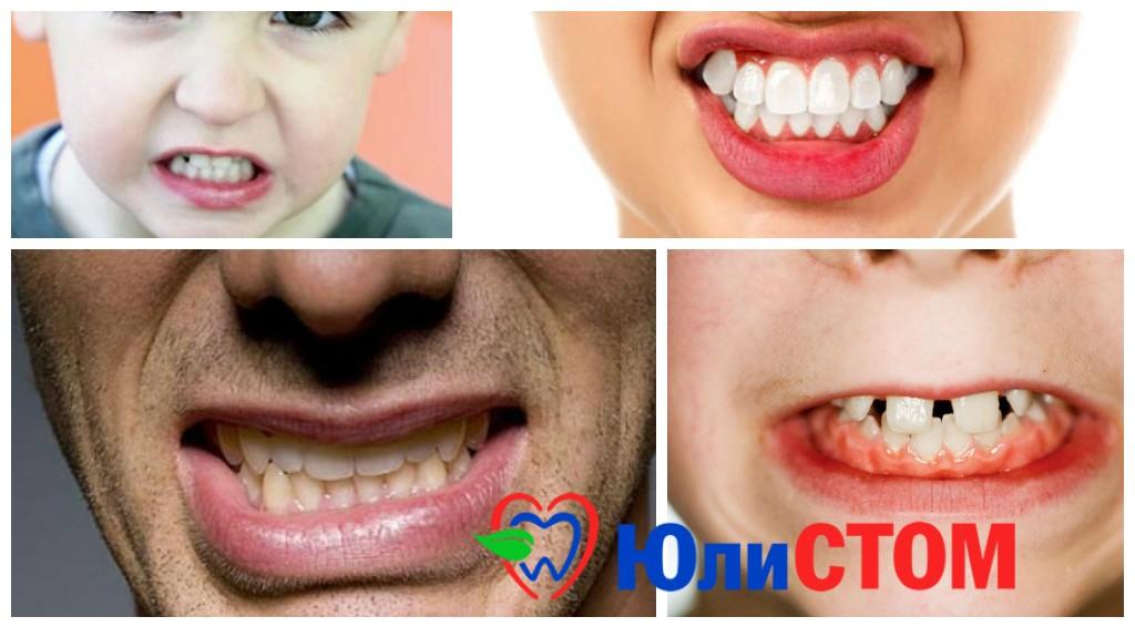 Скрежет зубами - бруксизм