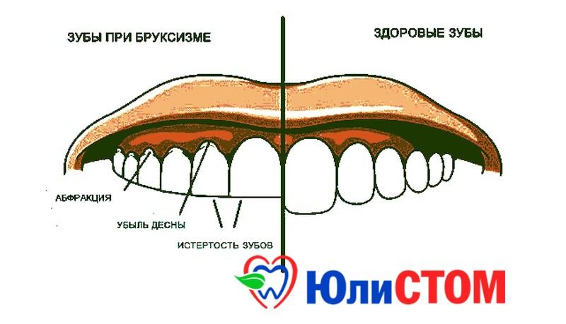 Скрежет зубов и его последствия