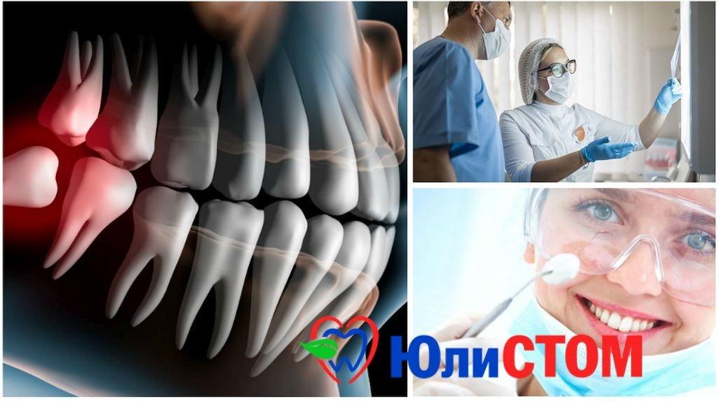 Что такое стоматология минимального вмещательства