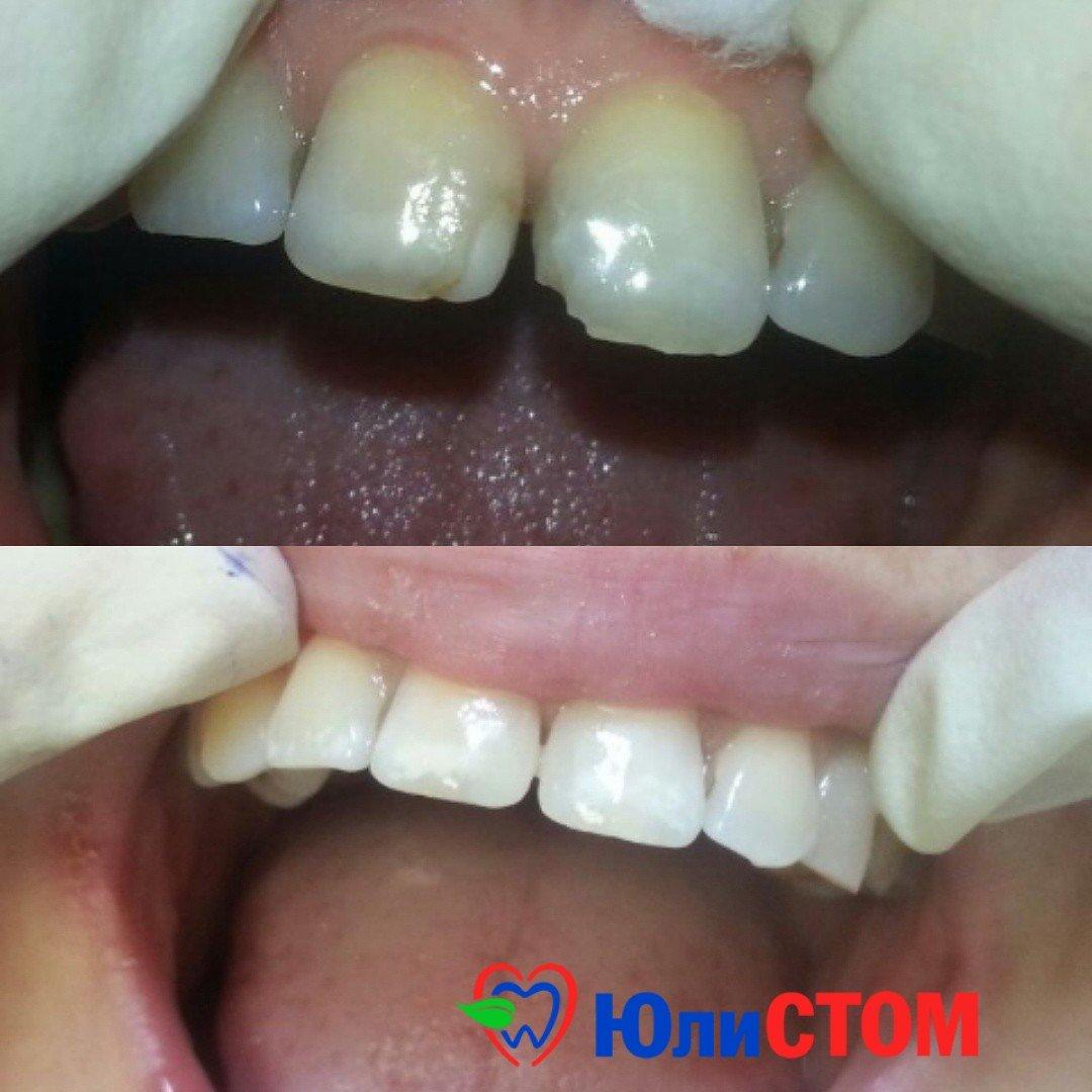 Пример эстетической реставрации зубов
