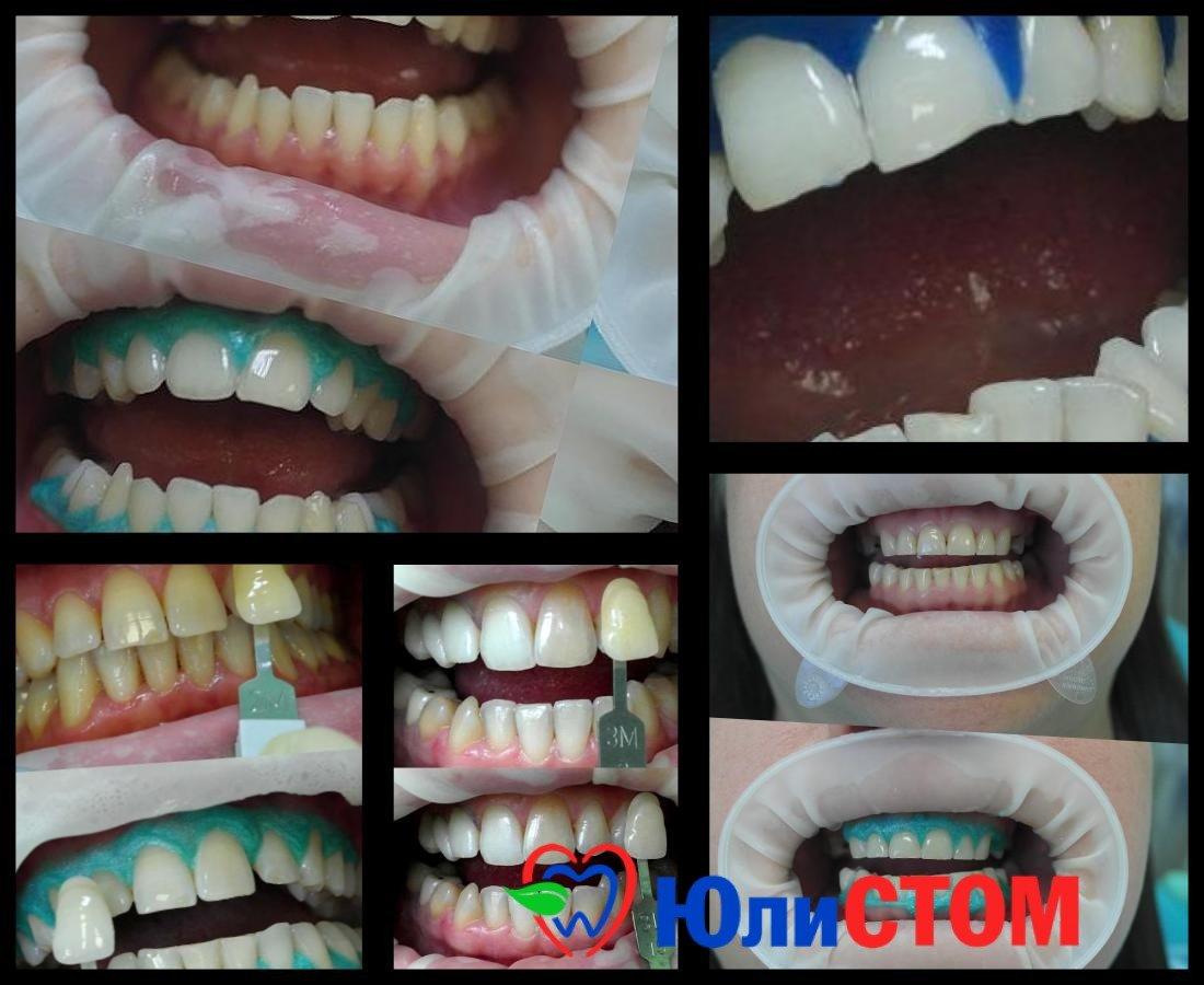Отбеливание зубов: акции