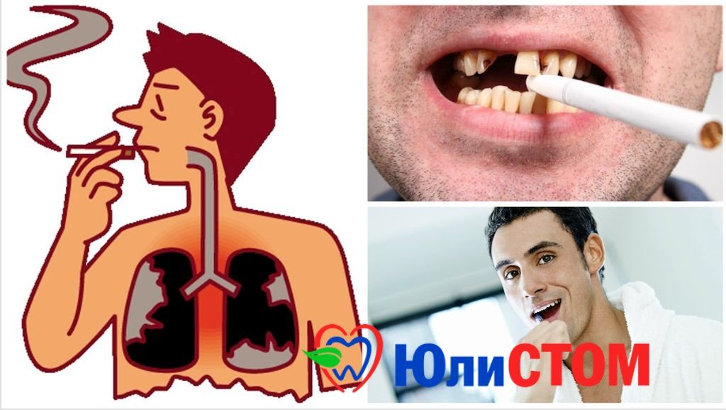 О курении и зубах