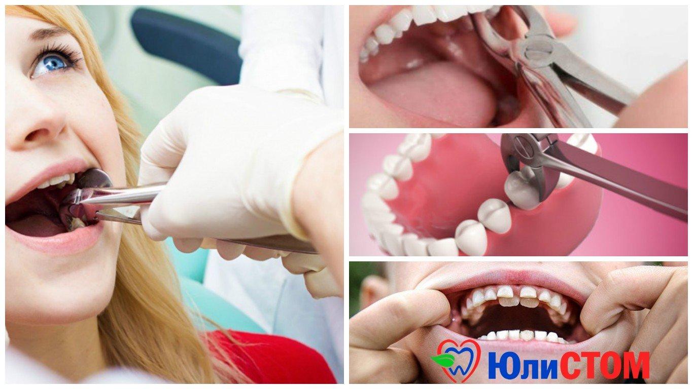 Удаление коренных зубов: причина и следствие