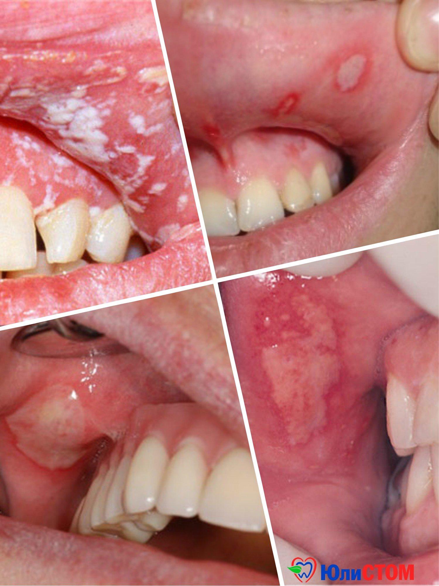 Язвенный стоматит: болезнь и лечение