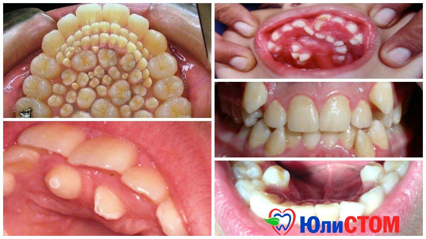Зубов может быть больше 32