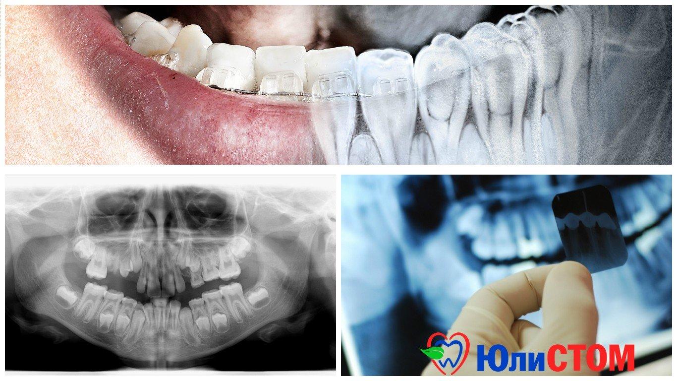 Рентгеновские снимки зубов