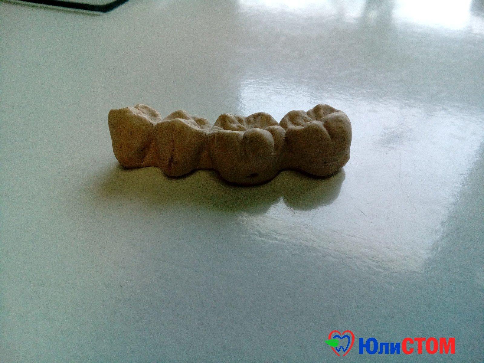 Протезирование - из раздела ортопедической стоматологии