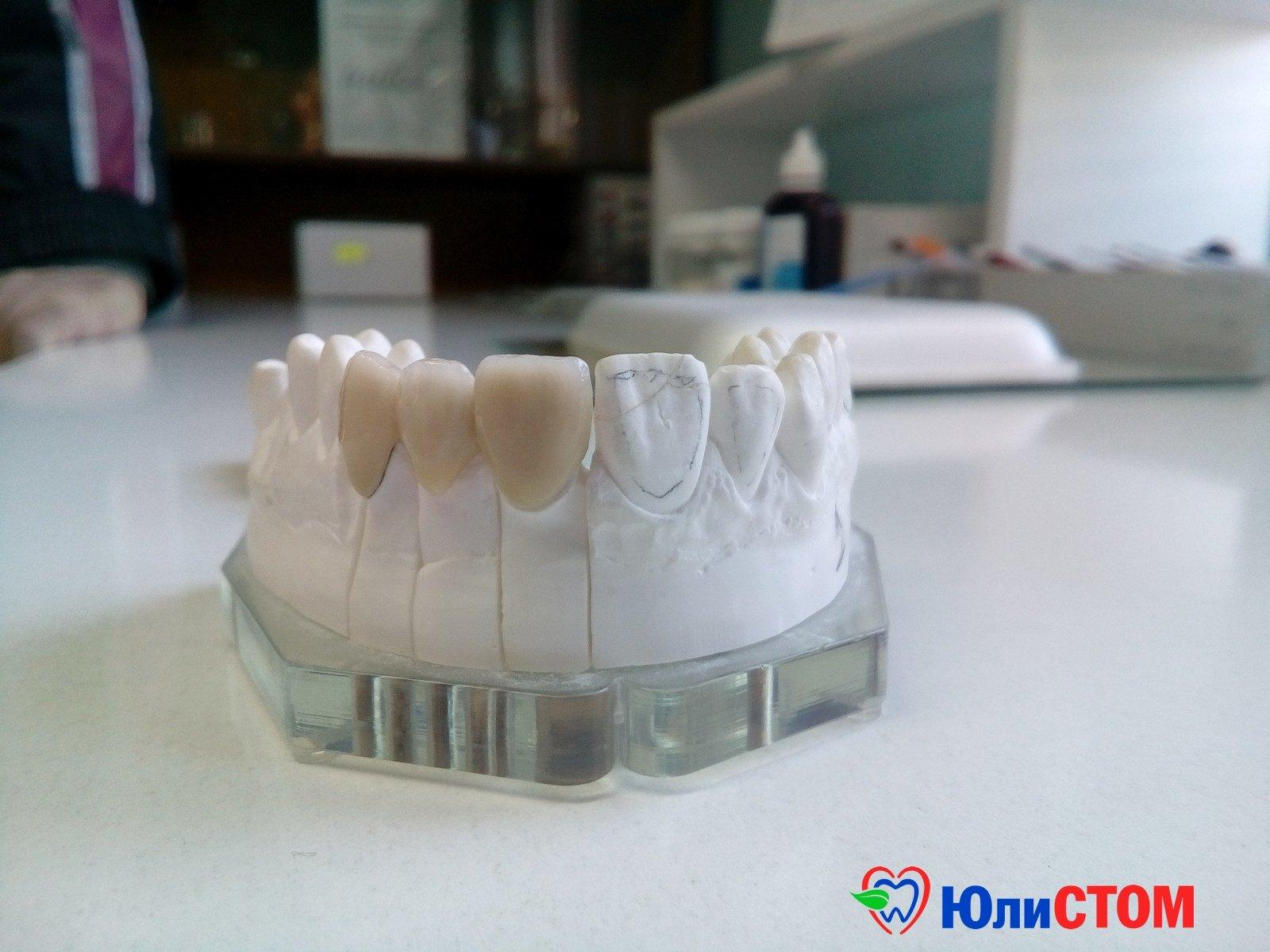 Качество зубных протезов зависит не только от цены, но и производителя