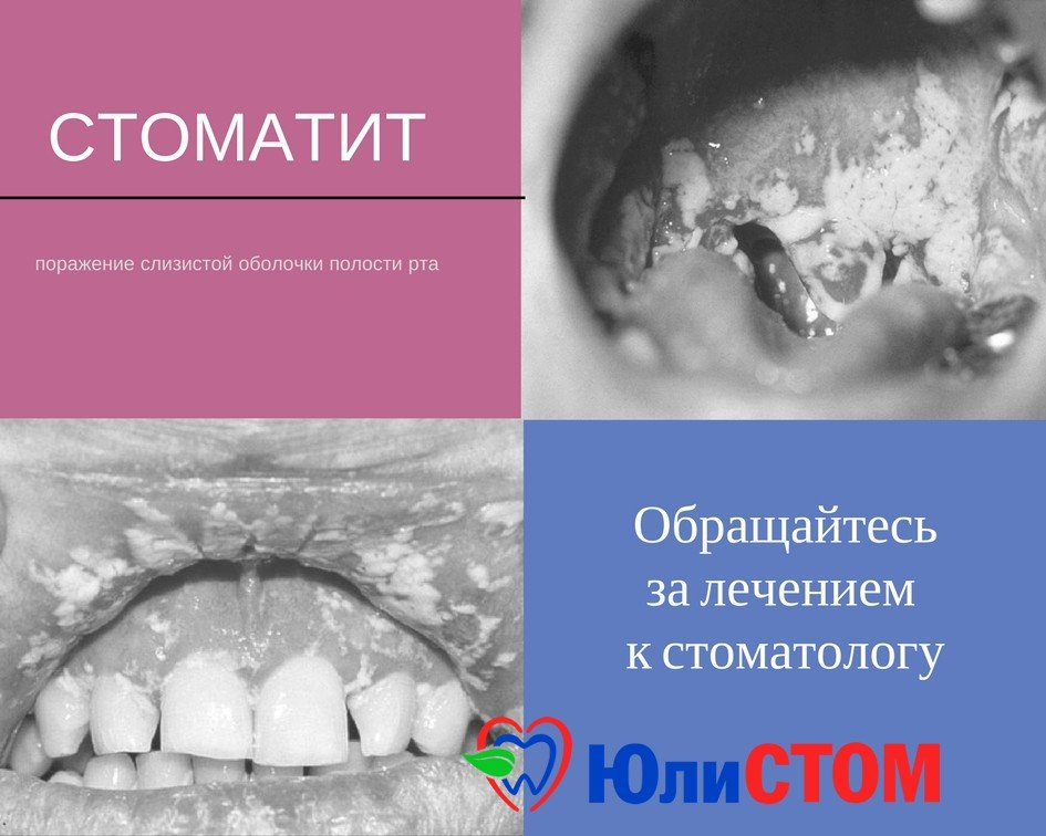 Стоматит: причины, следствие и лечение