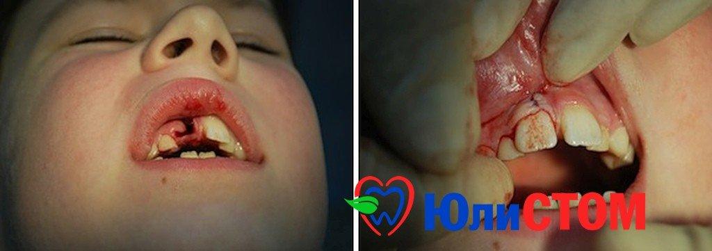 Процесс реимплантации зуба у ребенка