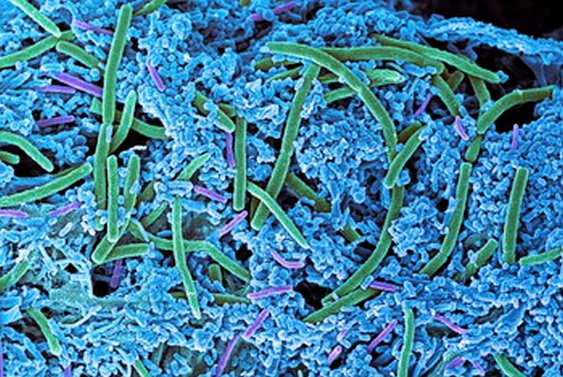 Бактерии на поверхности зуба