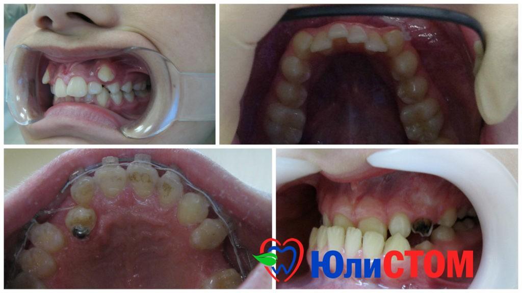 Шиповидный зуб у ребенка