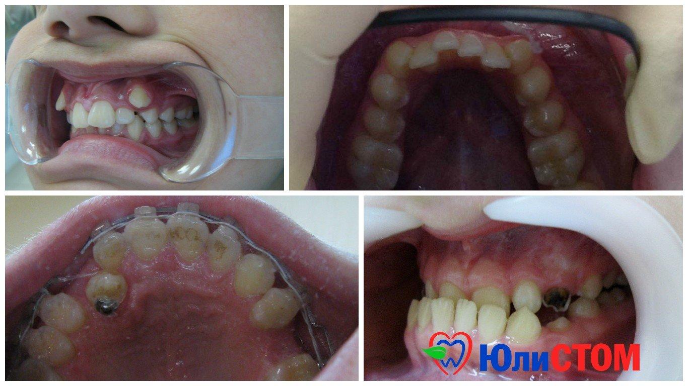Аномалии зубов. ФОТО