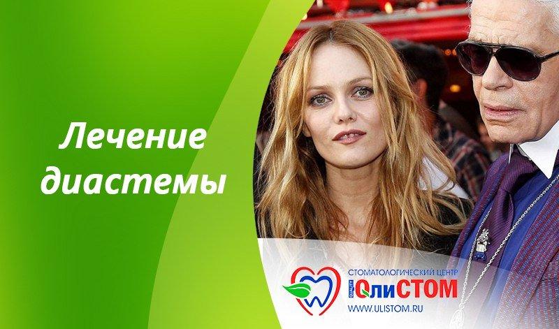 Лечение диастемы в Санкт-Петербурге