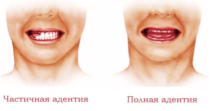 Примеры адентии