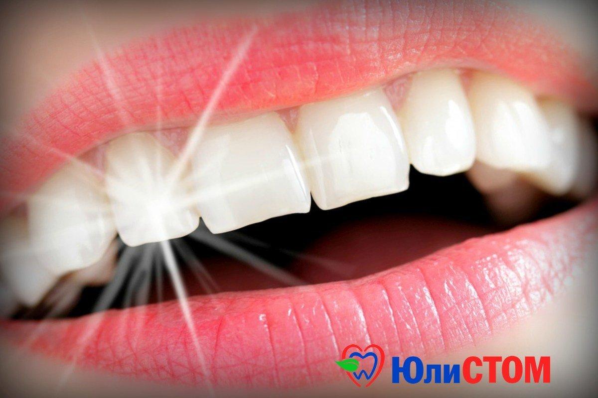 Скайс - зубные украшения