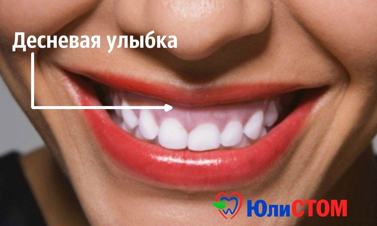 Десная улыбка. Фото