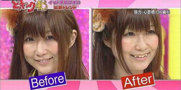 Кривые зубы в Японии - тренд