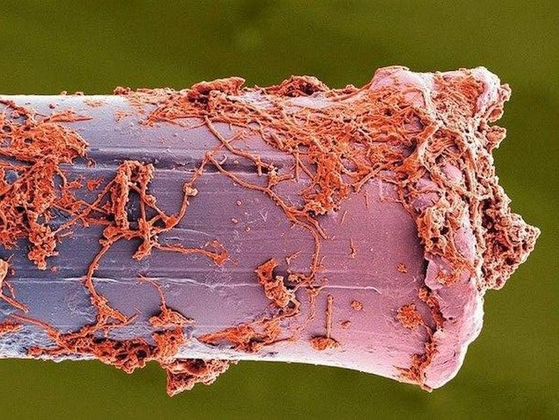 Зубная щетка под микроскопом