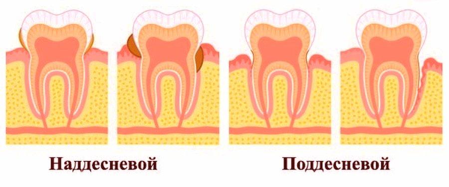 Наддесневой и поддесневой зубной налет