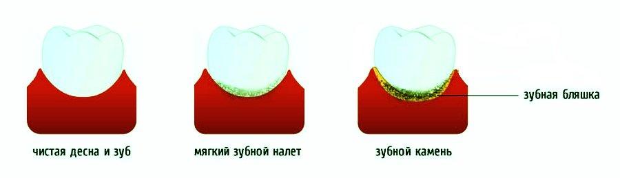 Неминерализованные зубные отложения