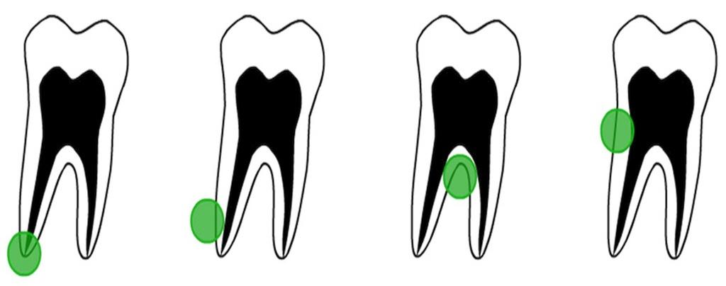 Места образования кисты зуба