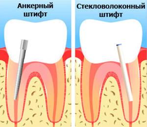 Штифт для зуба