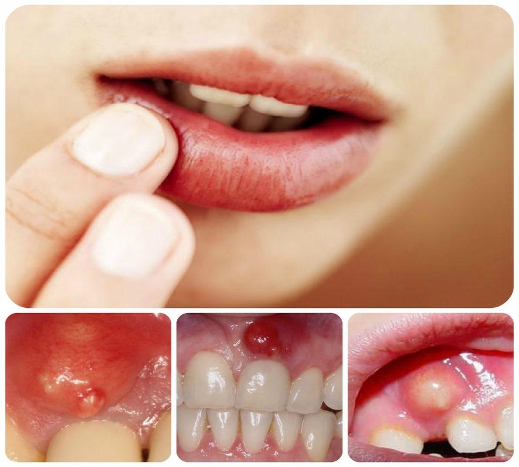 Периостит нижней челюсти как своевременно диагностировать и вылечить болезнь