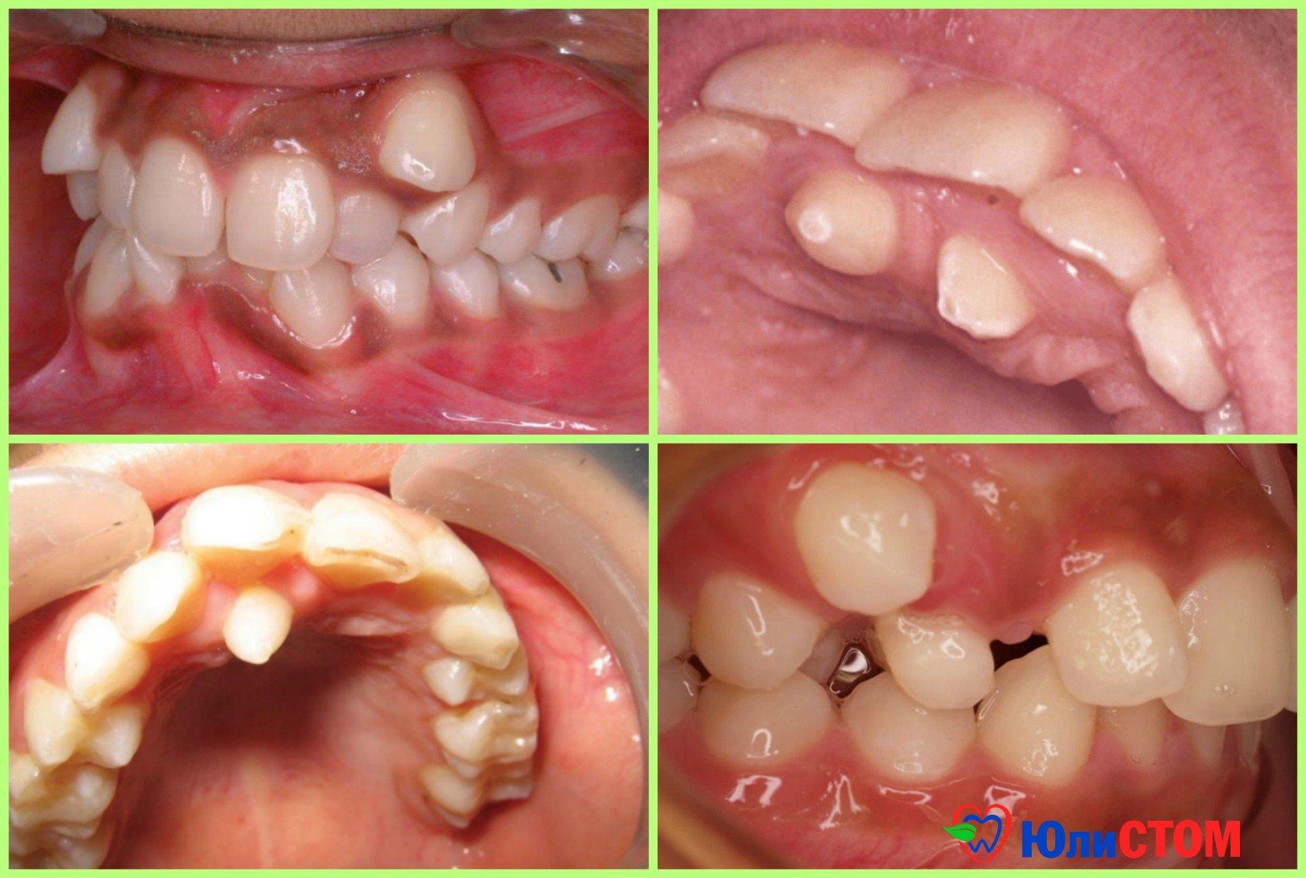 Гипердентия - аномалия числа зубов