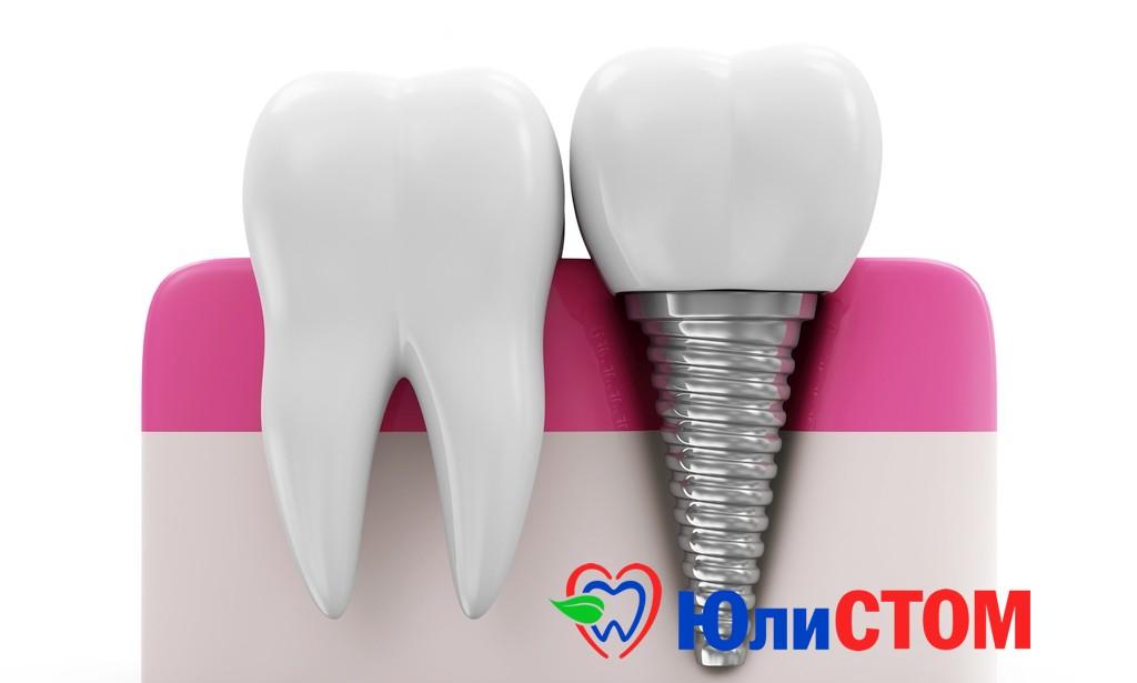 имплантаты зубов
