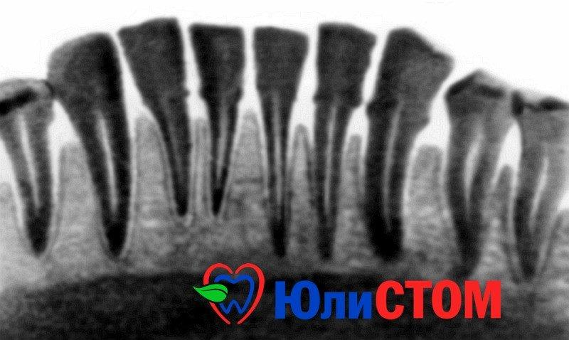 Пародонтоз на рентгеновском снимке
