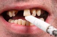 Курение - враг зубов