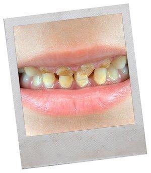 Коричневые пятна на зубах