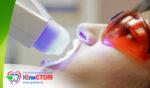 Отбеливание зубов холодным светом: особенности процедуры