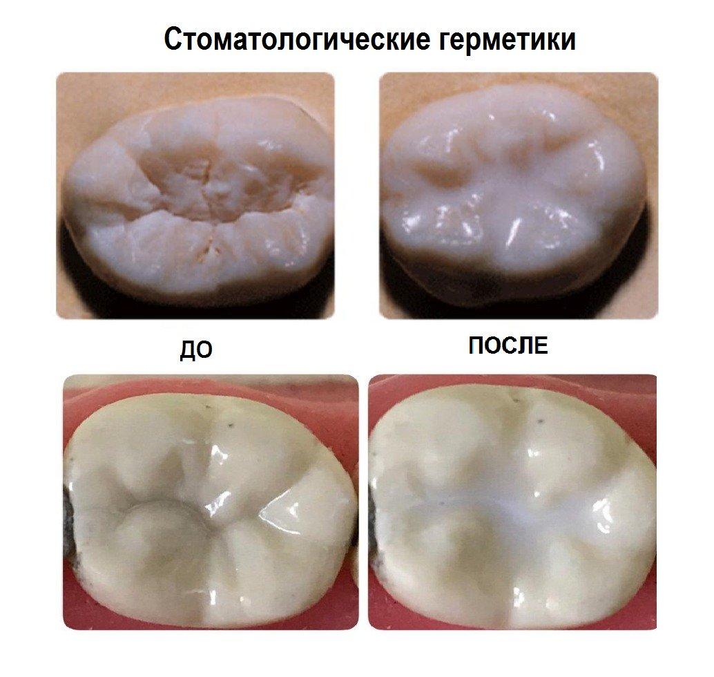 Стоматологические силаннты