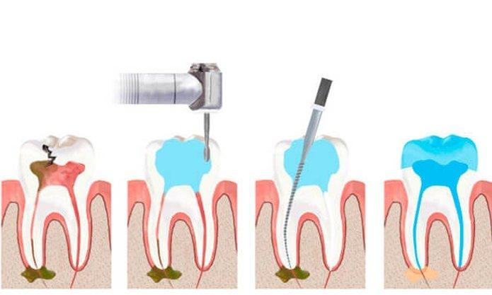 Процедура удаления зубного нерва