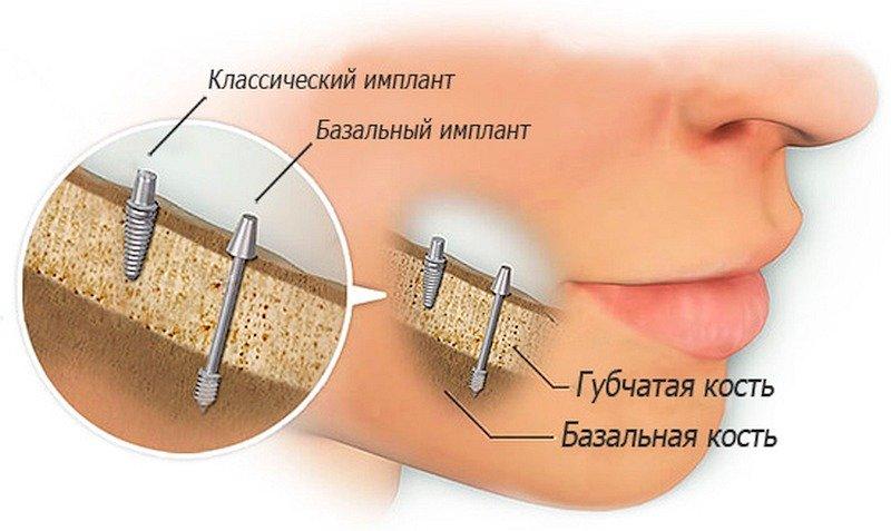 Классическая и базальная имплантация зубов