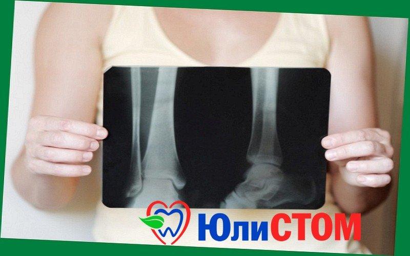 Остеопороз - выявление на рентгеновских снимках