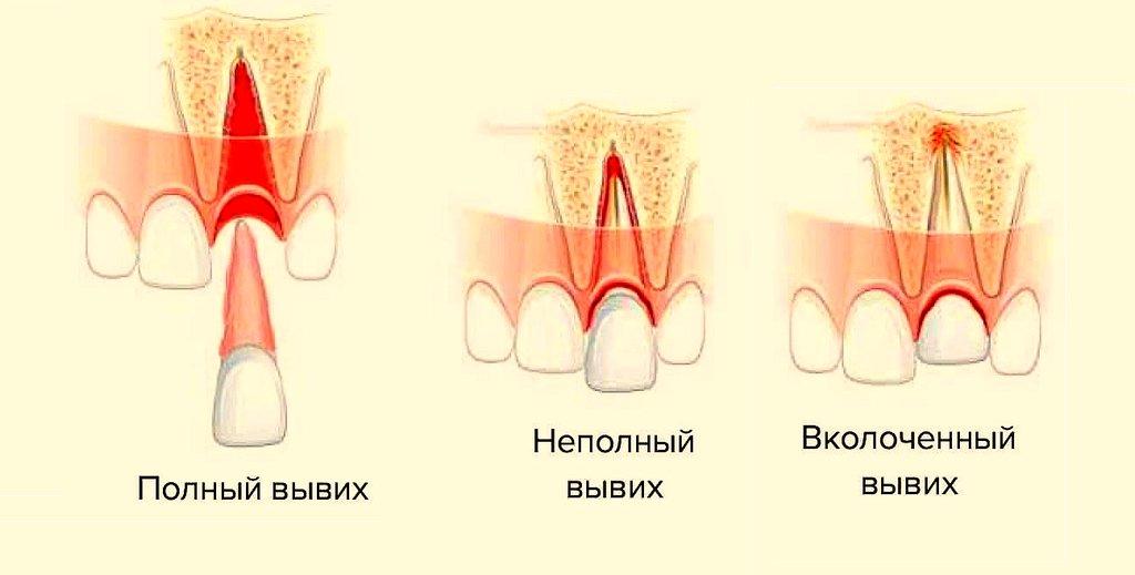 Разновидность вывихнутых зубов